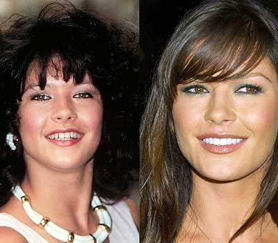 Ten Celebrities Who Have Fixed Their Teeth Dental Assistant